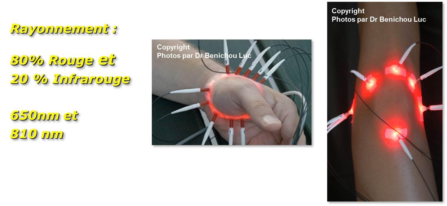LED Academy revue de la journée du 17 mars par le Dr BENICHOU - Les LEDs :Thérapeutique présente et future au cœur des cellules