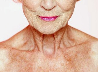 Inflammation, cicatrisation Photobiomodulation : Un Nouveau regard             1ère partie