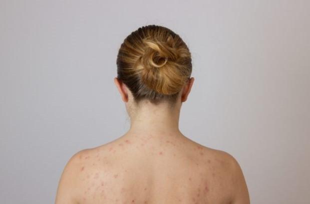 Traitement acné Dr Hausdörfer