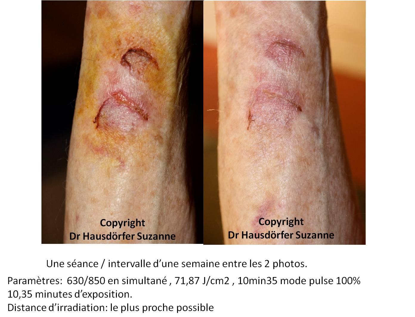 Cas cliniques par le dr hausdorfer suzanne belgique for Change vos fenetre cas par cas