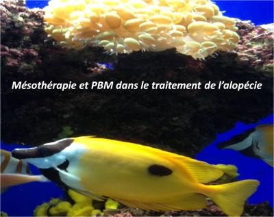 MESOTHERAPIE et PBM dans le traitement del'alopécie.    DR Izabela TILSZER