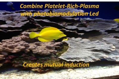Combine Platelet-Rich-Plasma with photobiomodulation Led creates mutual induction  -   LINDA FOUQUE MD