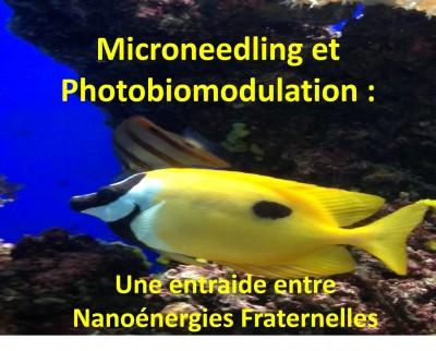 MICRONEEDLING et  PHOTOBIOMODULATION : Une ENTRAIDE  entre NANOENERGIES  FRATERNELLES - DR  G. CALDERHEAD