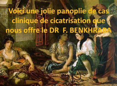 TRAITEMENT des CICATRICES  et des PLAIES par LED SEULE ou en  ASSOCIATION -  DR F. BENKHRABA LAABOUDI