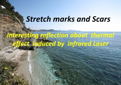 35th National Congress of Aesthetic Medicine and Dermatological Surgery Paris, September 12 & 13, 2014 - Stretch marks and Scars - Suzanne HAUSDORFER MD