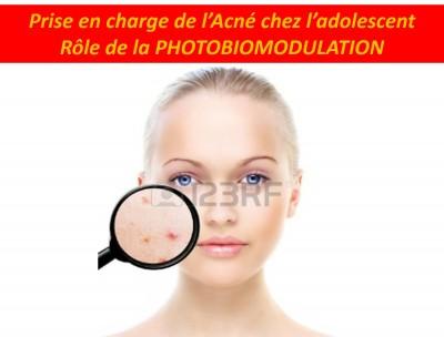 Prise en charge de l'acné chez l'adolescent Led Academy Dr PELLETIER