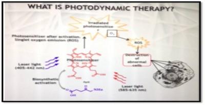 Photodynamic Therapies in Aesthetic Medicine : Olga ZHUKOFF (MD) - Olga PANOVA (MD) - Vladislav DUBENSKY (MD)