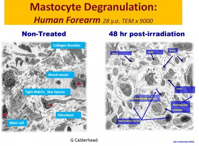 Characterization of Mast Cell Secretory Granules