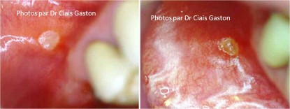 Aphte labial traité et 24 heures après