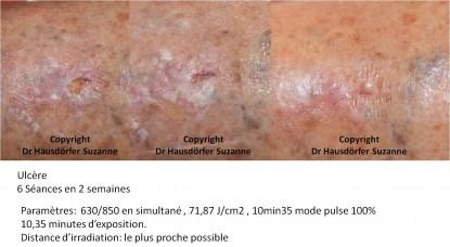 Cas cliniques par le Dr Hausdorfer Suzanne (belgique)