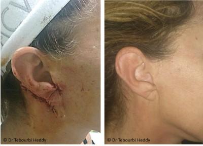 Cicatrisation Dr TEBOURBI